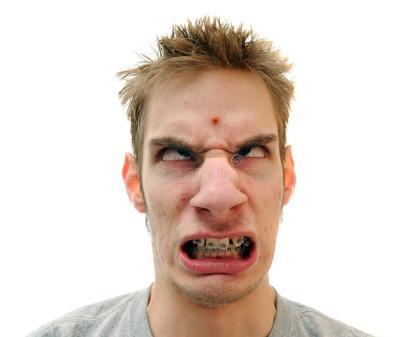 pimple-forehead-13000754